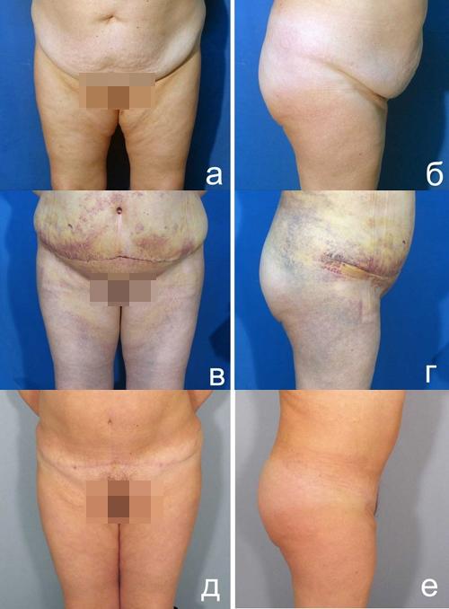 Оригинальная модификация липосакции передней брюшной стенки и дермэктомии у пациентов с ожирением 1-2 степени. Рис. 5