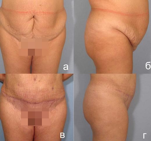 ожирение 2 степени у женщин как похудеть