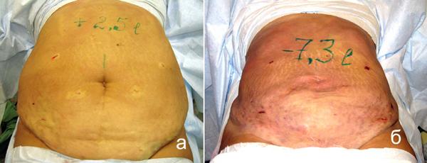 удаление жира с живота без операции