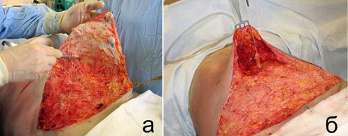 Оригинальная модификация липосакции передней брюшной стенки и дермэктомии у пациентов с ожирением 1-2 степени. Рис. 3