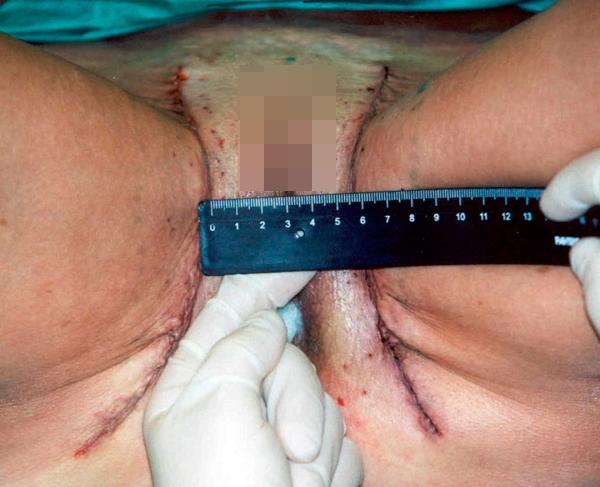 Подтяжка тканей внутренней поверхности бедер: новые технологии жесткой фиксации. Рис.10б