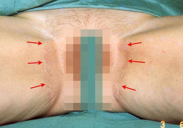 Подтяжка тканей внутренней поверхности бедер: новые технологии жесткой фиксации. Рис.2а