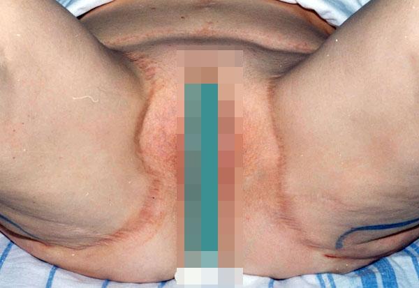 Подтяжка тканей внутренней поверхности бедер: новые технологии жесткой фиксации. Рис.2б