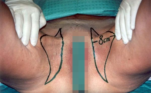 Подтяжка тканей внутренней поверхности бедер: новые технологии жесткой фиксации. Рис.4