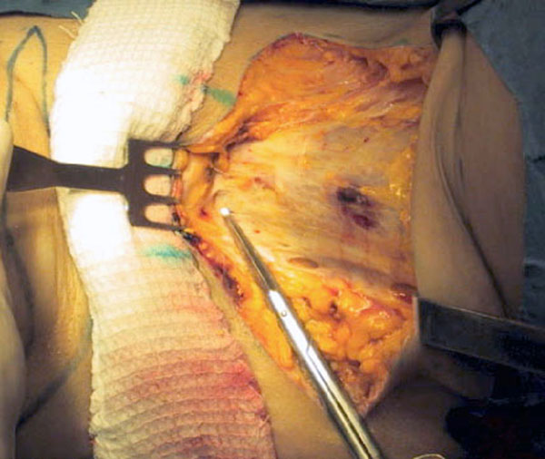 Подтяжка тканей внутренней поверхности бедер: новые технологии жесткой фиксации. Рис.5