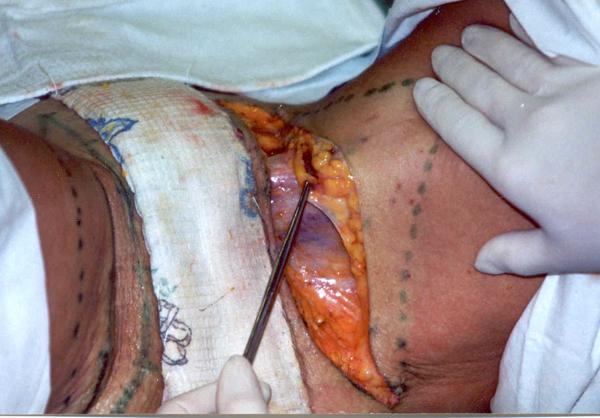 Подтяжка тканей внутренней поверхности бедер: новые технологии жесткой фиксации. Рис.6а