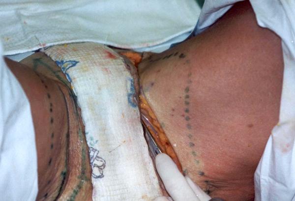 Подтяжка тканей внутренней поверхности бедер: новые технологии жесткой фиксации. Рис.6б