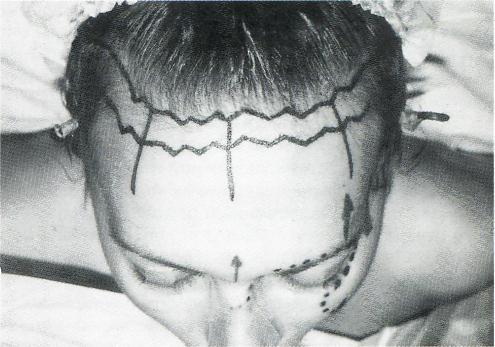 линии роста волос.