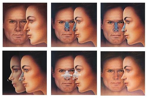 Ринопластика - пластика носа